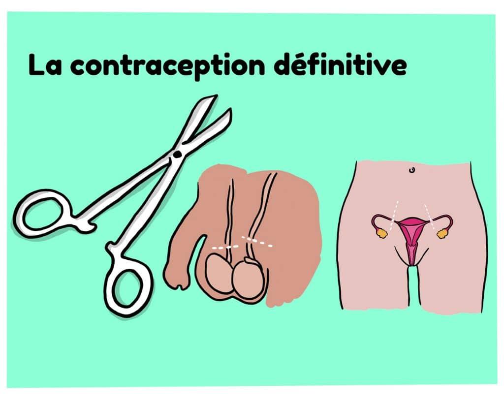 Schema explicatif contraception definitive chez la femme et l'homme