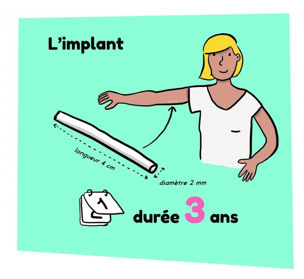 Illustration d'un implant contraceptif pour femme