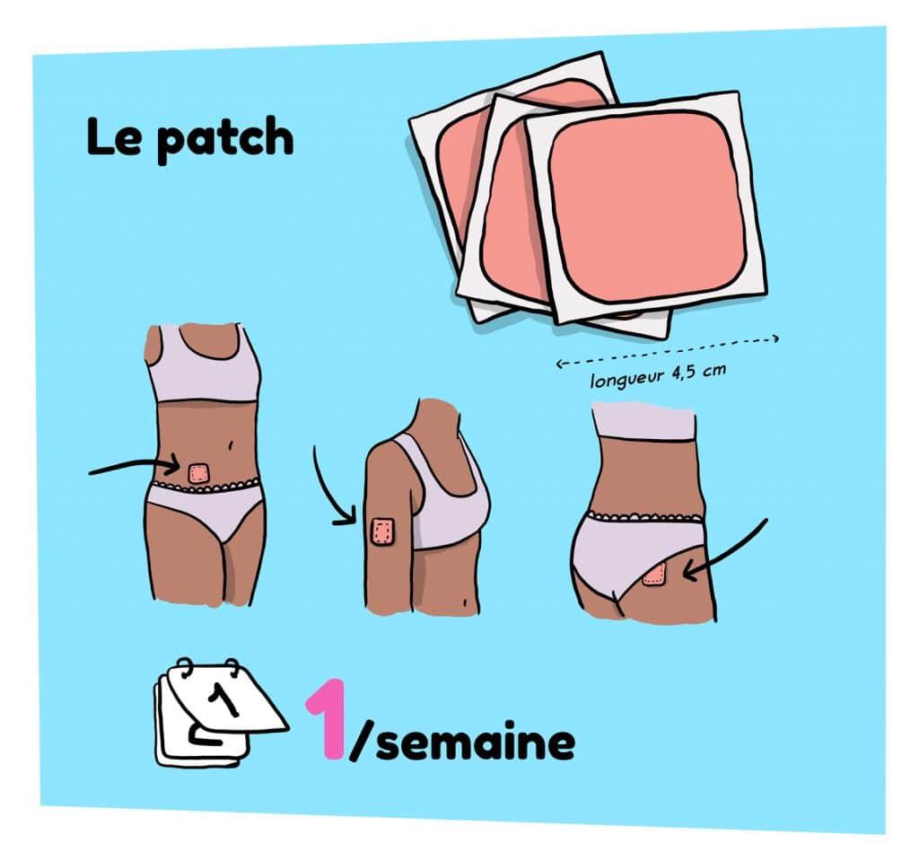 Illustration patch de contraception pour la femme sur le site parlons-sexualites.fr