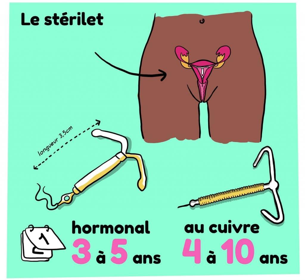 Illustration d'un sterilet ou DIU, contraception feminine